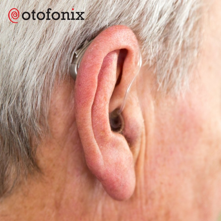 Otofonix Hearing Aid Amplifier